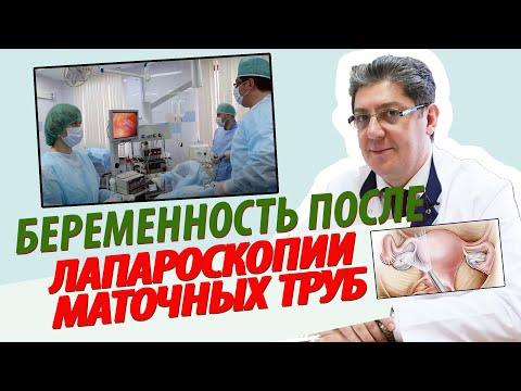 Лапароскопия маточных труб: беременность после операции