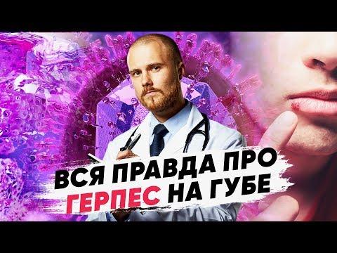 Опасен ли вирус герпеса? Герпес на губах лечение. Можно ли избавиться от вируса герпеса навсегда.