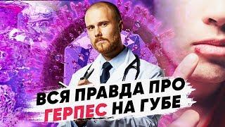 опасен ли вирус герпеса? Герпес на губах лечение. Можно ли избавиться от вируса герпеса навсегда