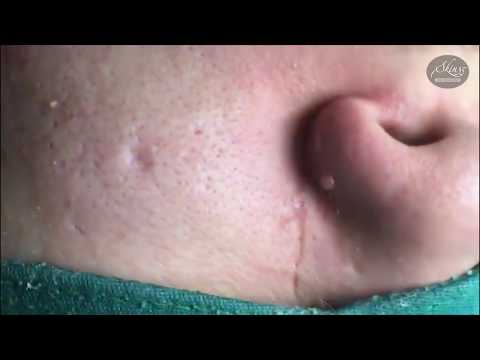 Tokyo Acne Treatment Blackhead Extractions Popping #35