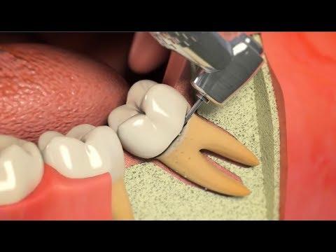 ฟันคุด ภายใต้ความเจ็บปวด ผ่าฟันคุด