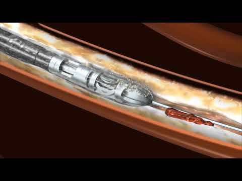 Atherectomy with Jetstream from Boston Scientific | CardioVisual