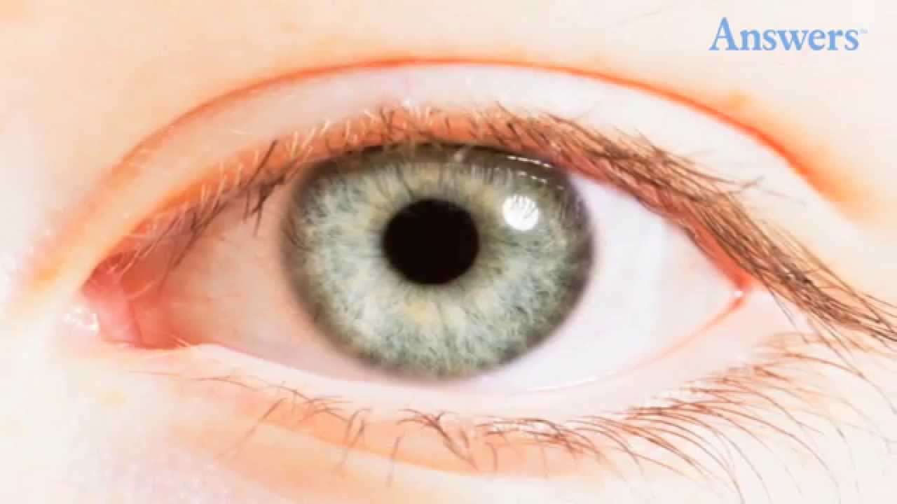 ac7c1d981ac Things Your Eyes Are Trying To Tell You About Your Health - YouTube