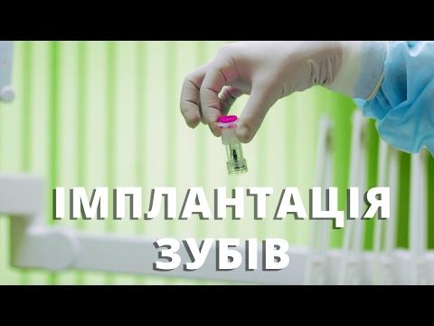 Імплантація зубів Ровно -