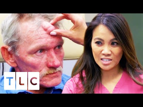 Man With Fear Of Doctors Gets Cyst Removed From His Face | Dr. Pimple Popper: This Is Zit