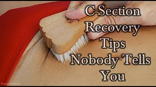 5 C-Section Recovery Tips That Nobody Ever Tells You! #NaturalRemedies