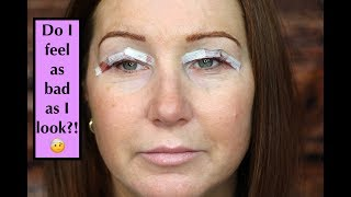 Blepharoplasty (Eyelid Surgery) Experience - Day 1 & 2 Post Surgery