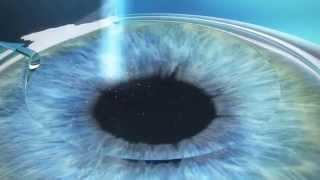 Femto LASIK (Фeмто ЛАСИК) - Лазерная Коррекция Зрения(Видео лазерной коррекции зрения по методу Femto LASIK (Фeмто ЛАСИК). Подробнее здесь: http://mosglaz.ru/blog/item/637-femto-lasik.html..., 2015-04-05T17:34:41.000Z)