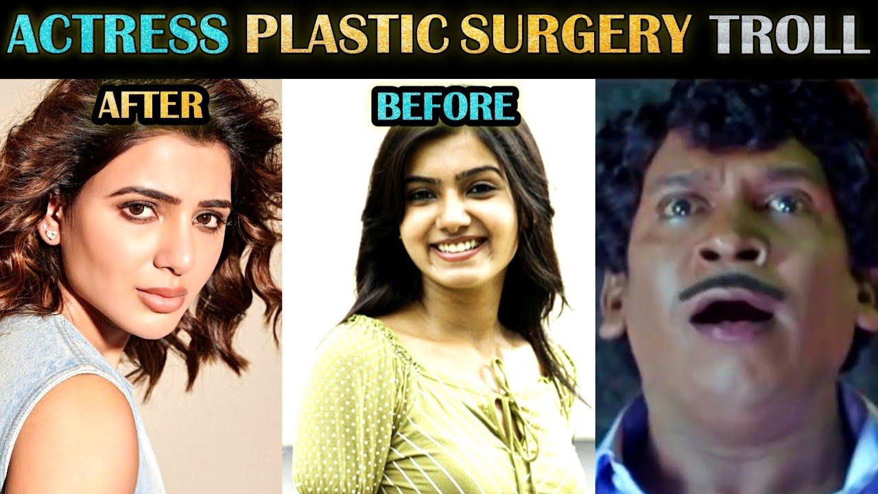 Actresses Before & After Plastic Surgery Troll | Samantha | South Indian | Tamil | Rakesh & Jeni
