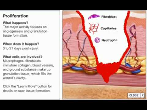 Stages of Wound Healing Process - YouTube