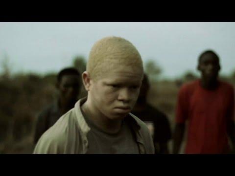 Filamu inayoangazia masaibu ya albino