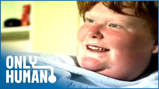 The Compulsive Overeating Disorder | Kids with Prader-Willi Syndrome | Only Human