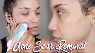 NIGHT SKINCARE ROUTINE | Acne Scar Removal | RAVEN ELYSE