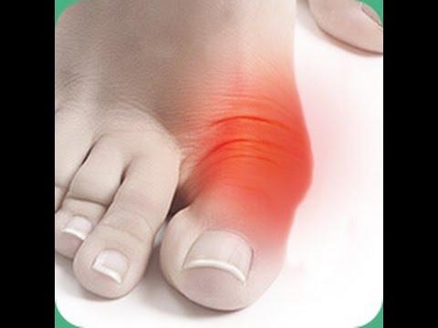 Артроз большого пальца руки — это частая проблема, возникающая с возрастом. При этой патологии происходит износ суставного хряща между первой пястной костью и костью-трапецией. Артроз пальца может доставлять серьезный дискомфорт, боль, отек, ограничение движений большого пальца.