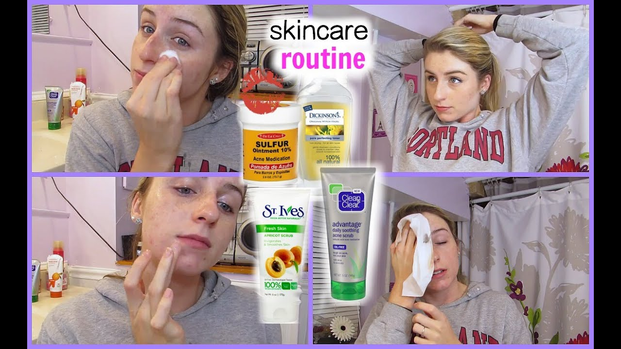 After Sick : Sulfur remedy For acne