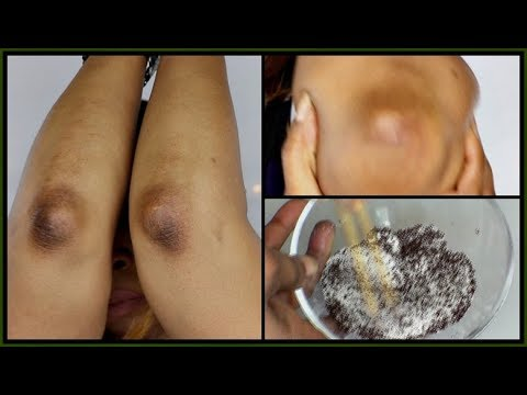 LOOK WHAT I USE TO GET RID OF MY DARK ELBOWS AND KNEES |Khichi Beauty