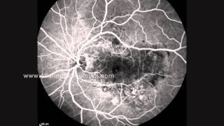 videoangiografia retinal.wmv