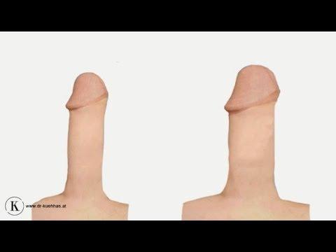 Penisverdickung mit Eigenfett
