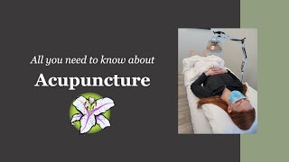 Acupuncture - All You Need To Know