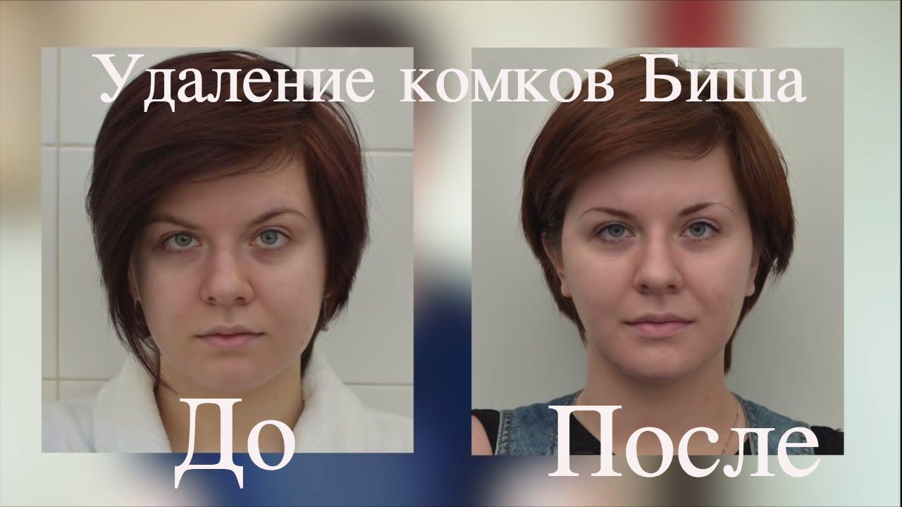 фото до и после комочки биша