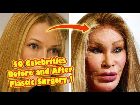 50 Celebrities Who Destroyed Themselves With Plastic Surgery !
