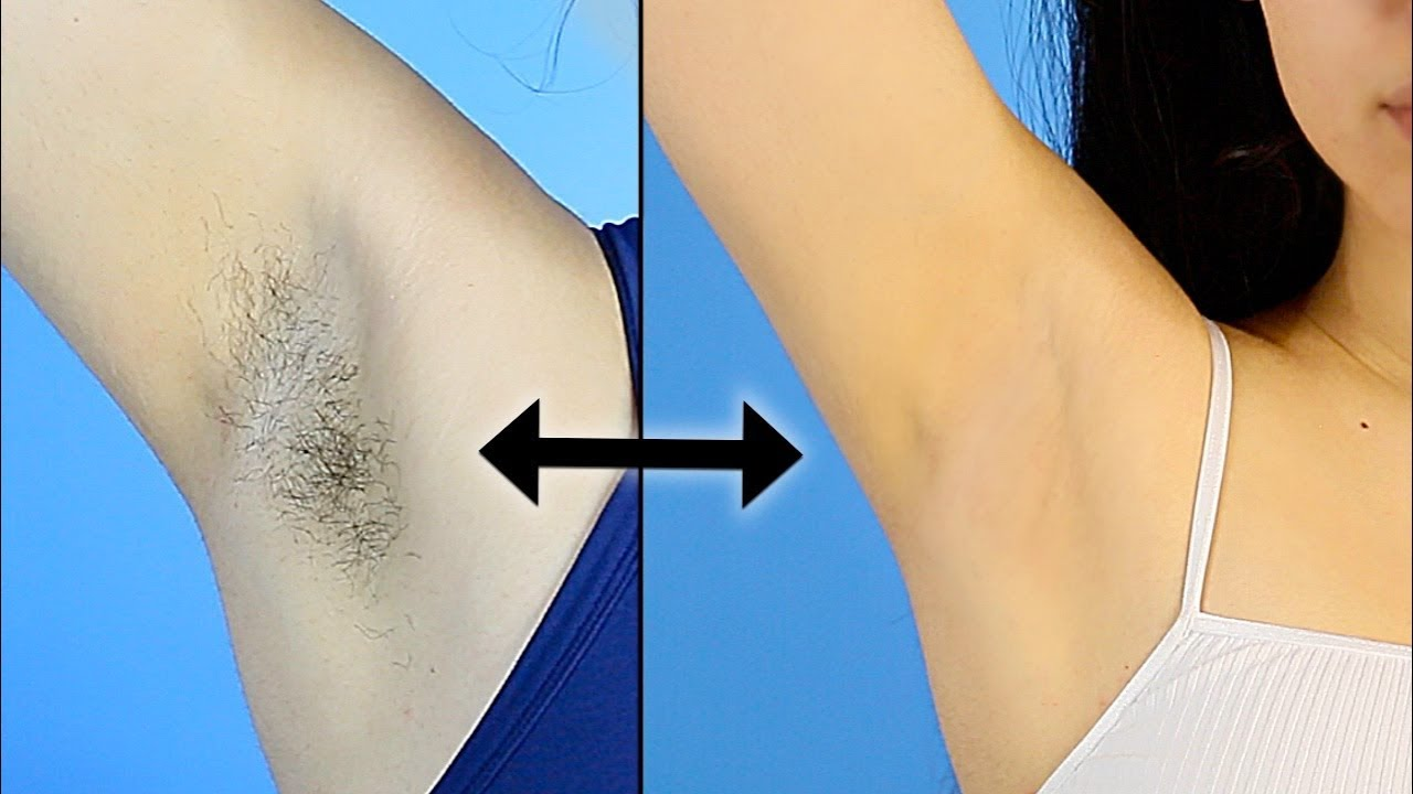 My Armpit Routine Hair Removal Preventing Dark Underarms Youtube
