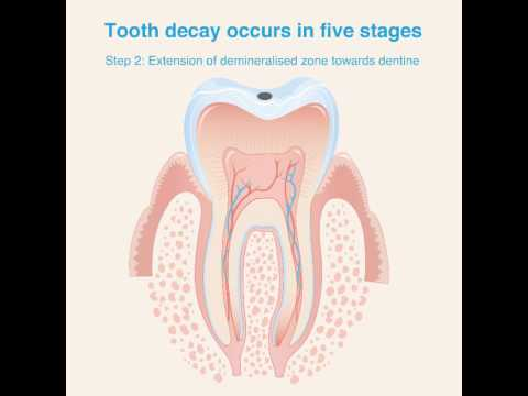 Tooth decay occurs in five stages - YouTube