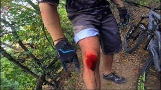 QUANDO si DIMENTICANO le GINOCCHIERE- Bici-Vlog #3