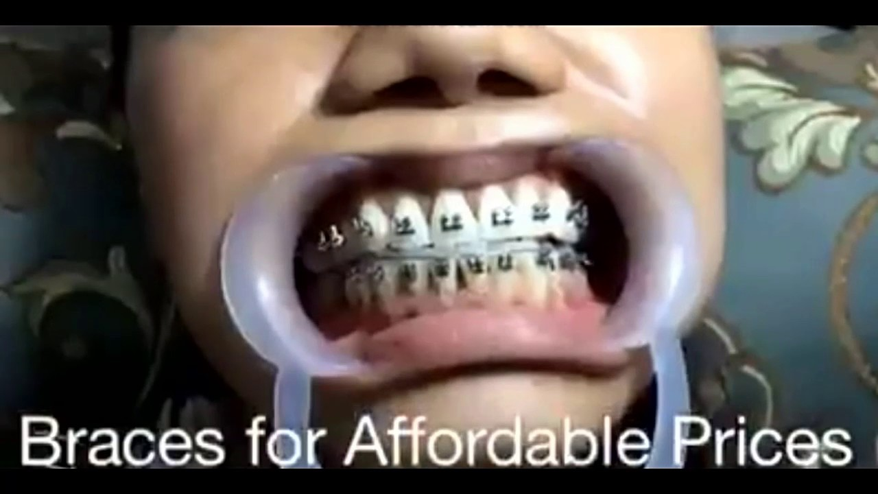 Affordable and cheap braces fashion only not for real youtube affordable and cheap braces fashion only not for real solutioingenieria Image collections