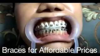 Saksi ilang kabataan nahumaling sa do it yourself braces na affordable and cheap braces fashion only not for real solutioingenieria Choice Image