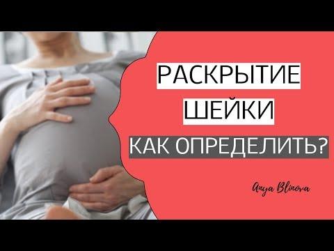 КАК ОПРЕДЕЛИТЬ РАСКРЫТИЕ ШЕЙКИ МАТКИ | признаки раскрытия шейки матки