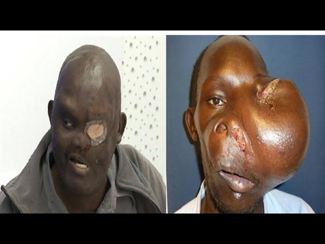 El doctor Cavadas operó cuatro veces a un keniata afectado por un tumor