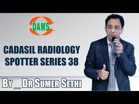#CADASIL #Radiology Spotter Series 38 By Dr Sumer Sethi