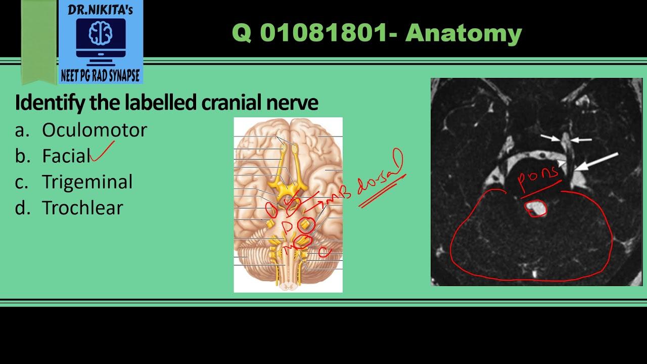 Cranial nerves anatomy and identification- MRI