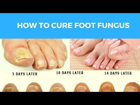 Fungus Key Pro – How To Cure Foot Fungus