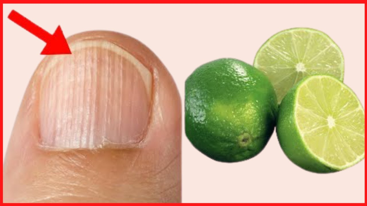 Top 3 Natural Home Remedies for Black Lines on Nails| How to get rid ...
