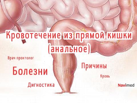 Почему и как возникает кровотечение из прямой кишки (анальное).  Обзор причин и симптомов в видео