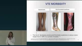 Tromboembolismo fisiopatologia do