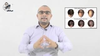 بالفيديو.. 'في العضل' يكشف كيفية مواجهة 'الصلع' لدى النساء