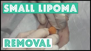 Popping of a Lipoma on the Right Upper Arm