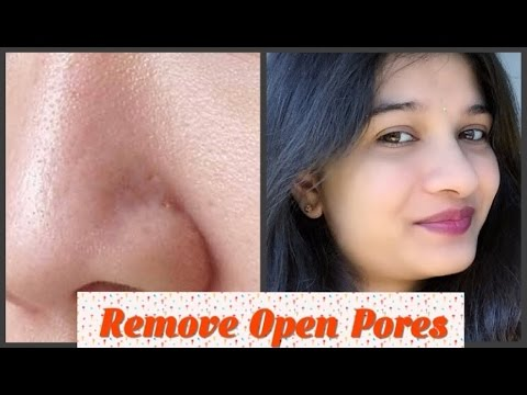 #11-beauty-tips:-natural-home-remedy-for-large-or-open-pores-problem-in-hindi-eng-subtitles-skincare