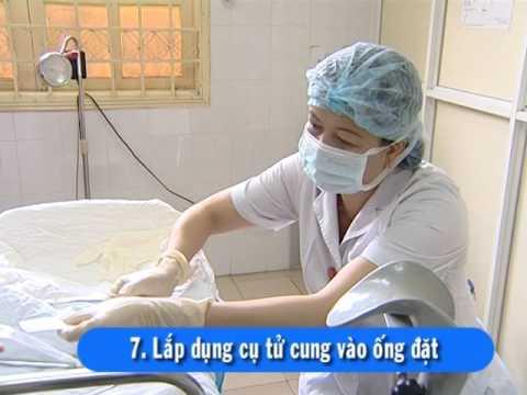 Đặt dụng cụ tử cung TCu 380A