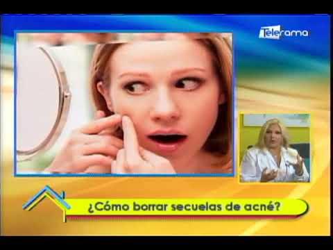 ¿Cómo borrar secuelas de acné?