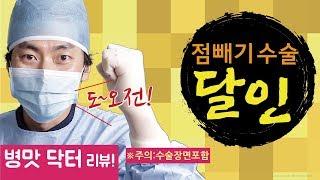[점빼기]점빼는영상 (폭망 점빼기후기 리뷰)