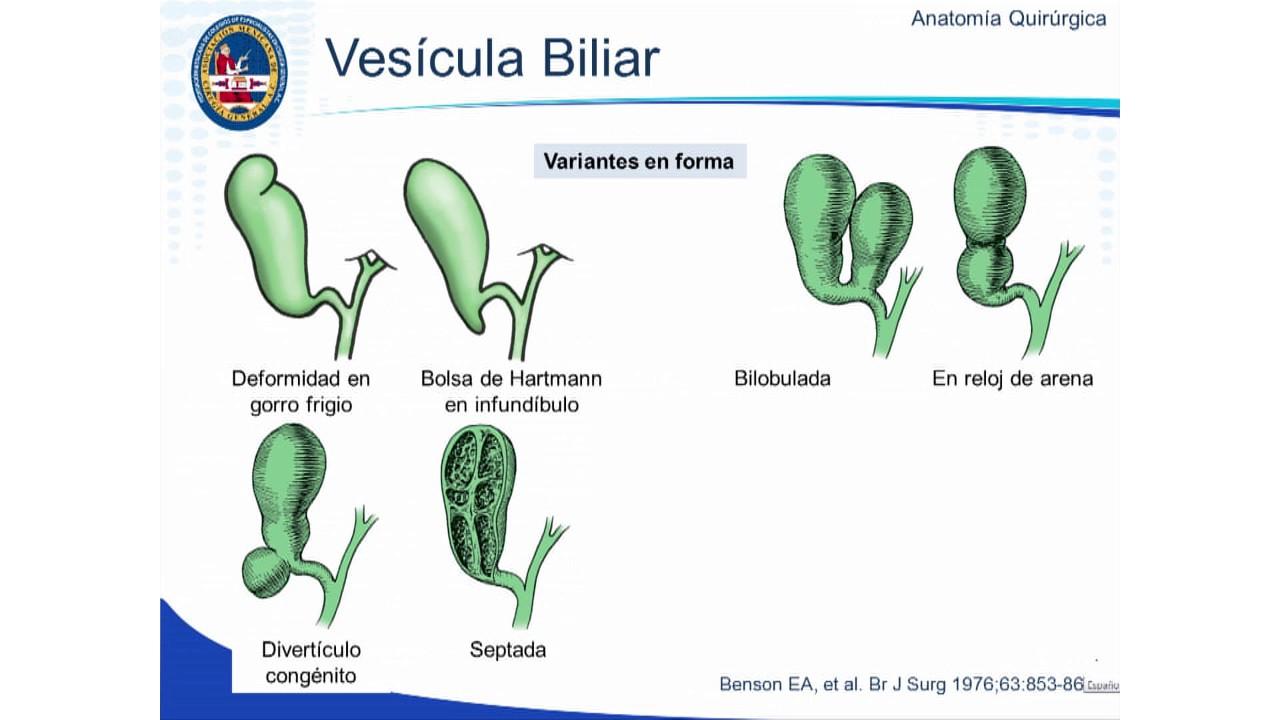 Variantes Anatómicas y Anatomía Quirúrgica de las Vías Biliares ...