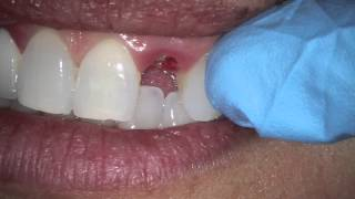 tooth sheared off at gum line