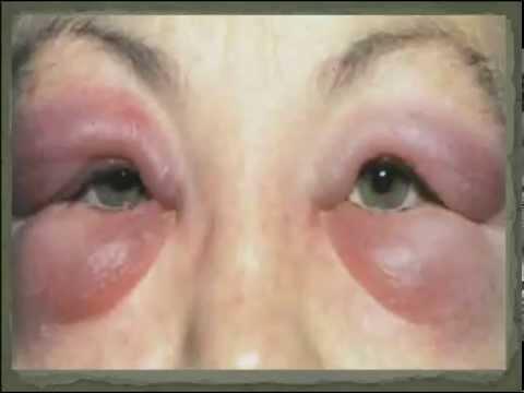 Отек Квинке - симптомы, лечение, профилактика, причины