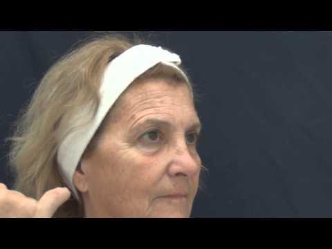 Rejuvenecimiento facial completo más tratamiento con Fire-Xel / More-Xel (15094)