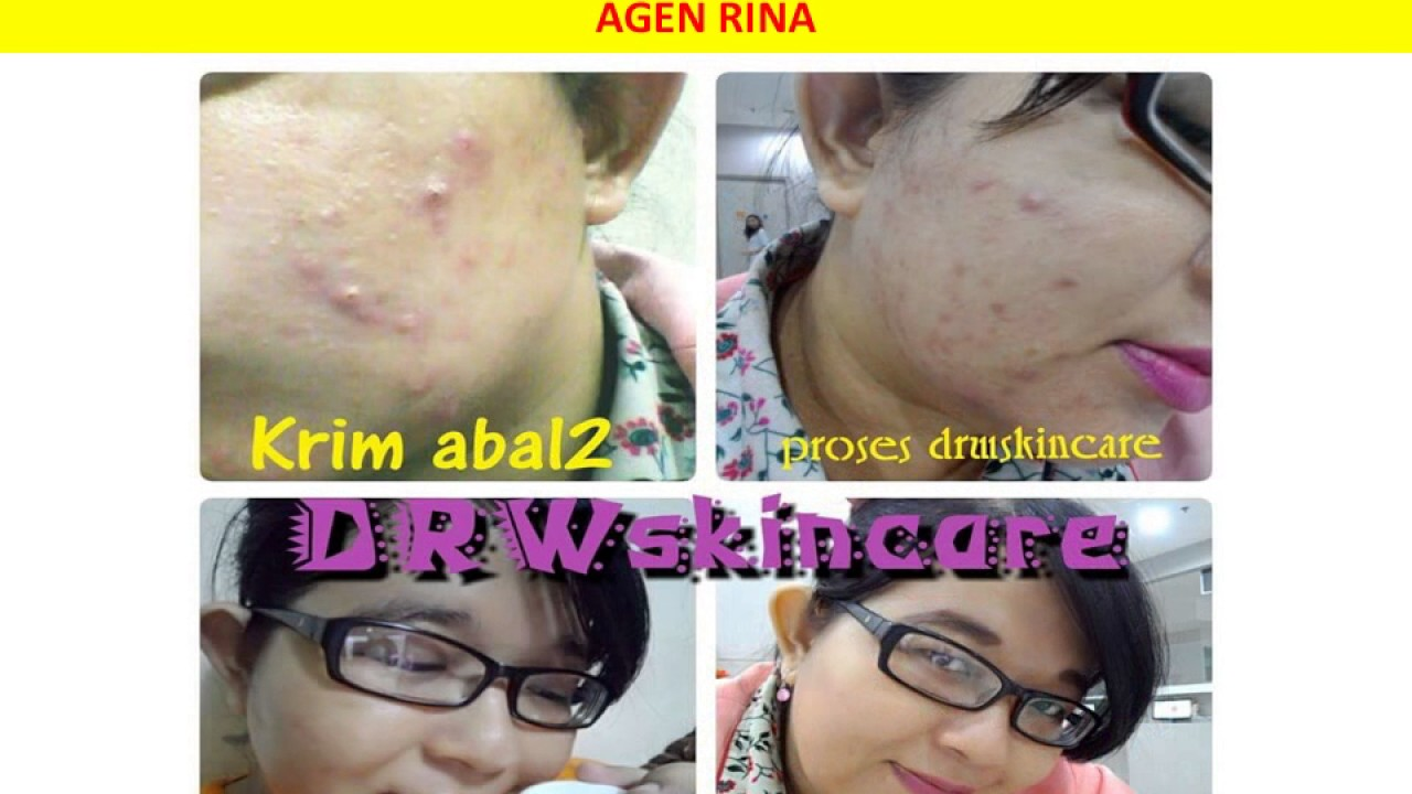 0813 3341 4914 Tsel Drw Skincare Bandung Youtube