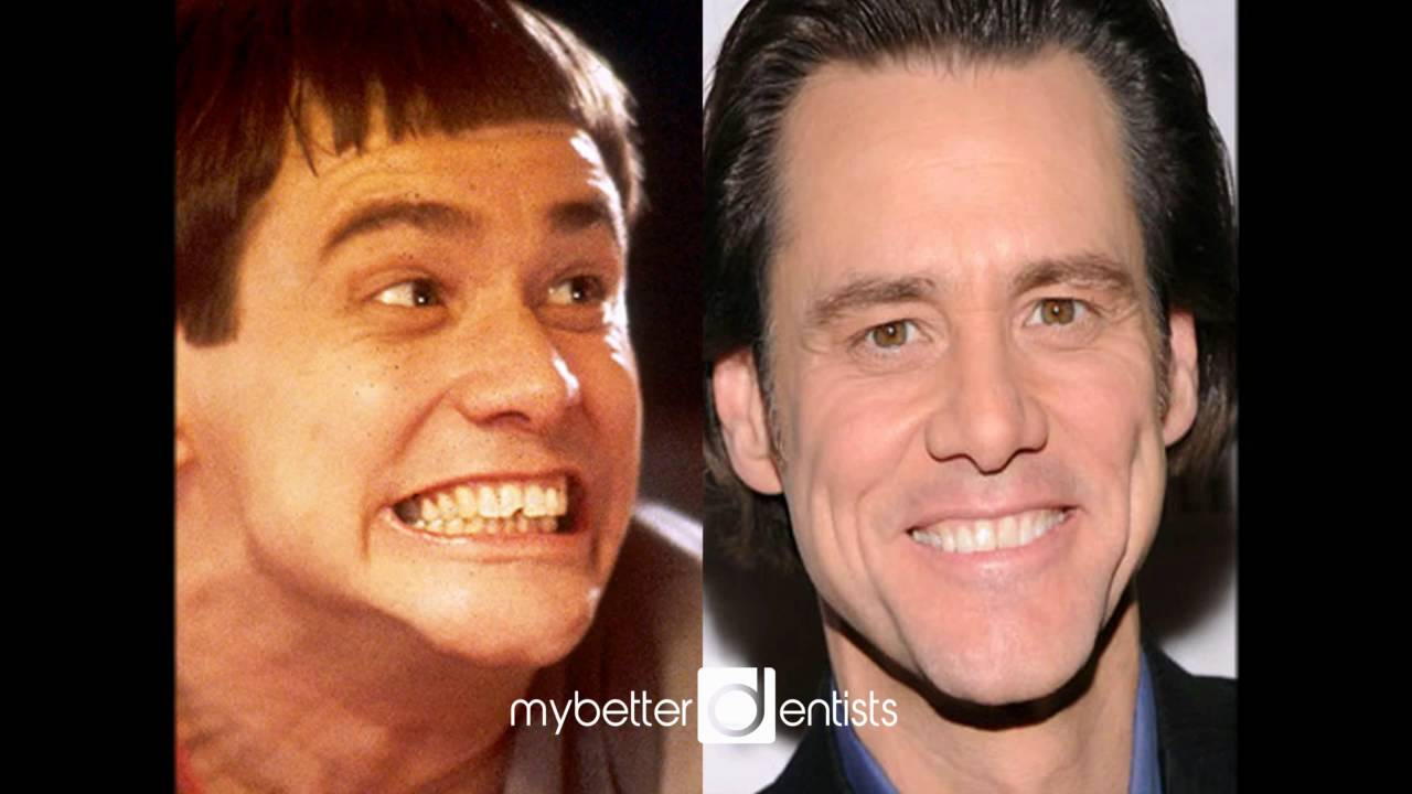 Celebrity Teeth Before & After: Teeth Whitening Makeovers ...